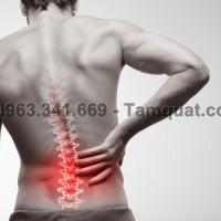 Đau tê cứng lưng là chứng đau phổ biến nhất ở những người thành thị